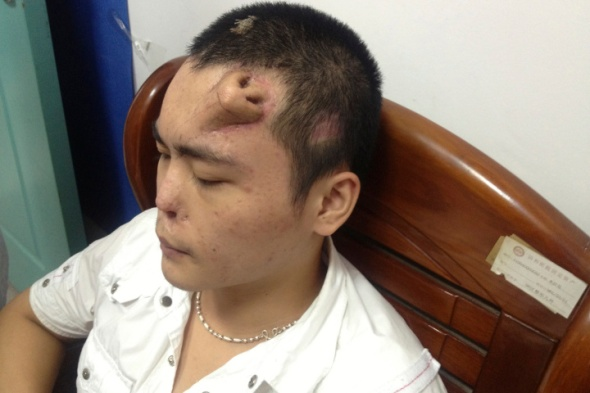 A new nose, grown by surgeons on Xiaolian's forehead, is pictured before being transplanted to replace the original nose.