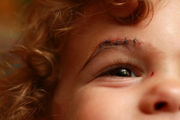 Two-year-old Ben Bellar of East Lansing, Mich., getting stitches after a fall at home. The bill for his treatment came to more than $2,000.Fabrizio Costantini for the New York Times