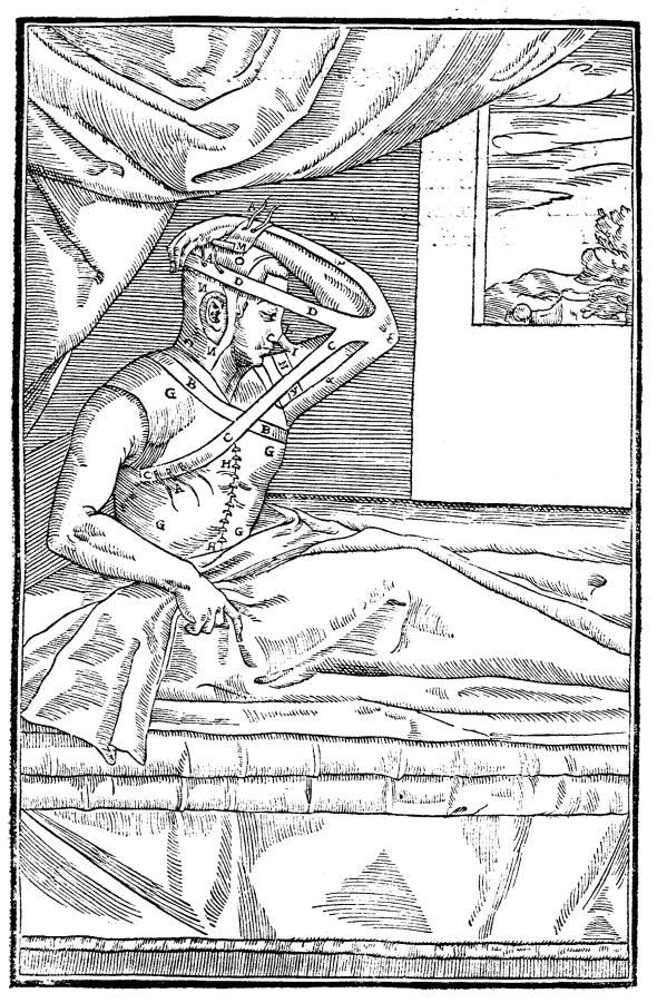 This illustration is attributed to Gasparo Tagliacozzi and appears in the book De Curtorum Chirurgia Per Insitionem and comes via Wikimedia Commons