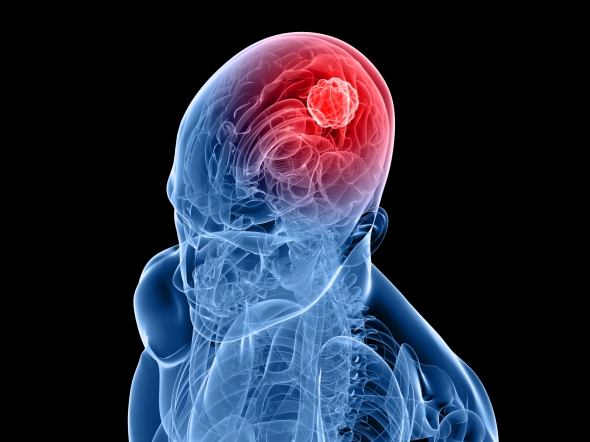 The mysterious increase in brain tumors is concentrated primarily in the gulf coast region of the U.S., say researchers