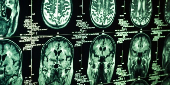 inoperable-brain-tumor-scans-660x330