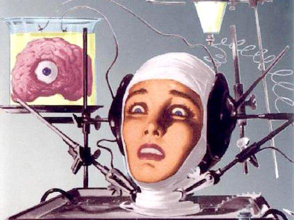 transplant-brain