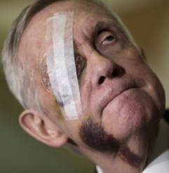 harry-reid-bruises-afp-640x480
